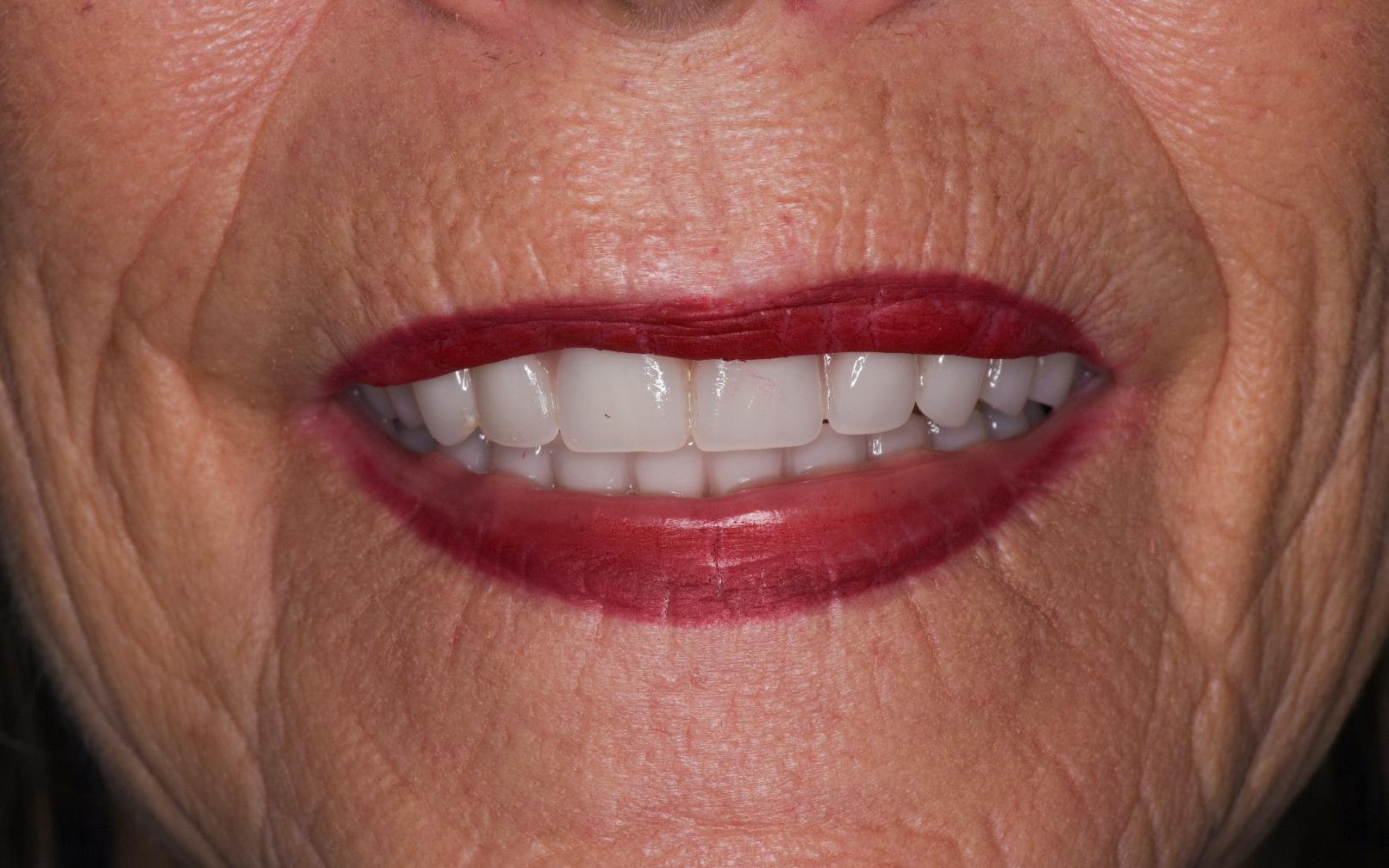 Denture Implants After